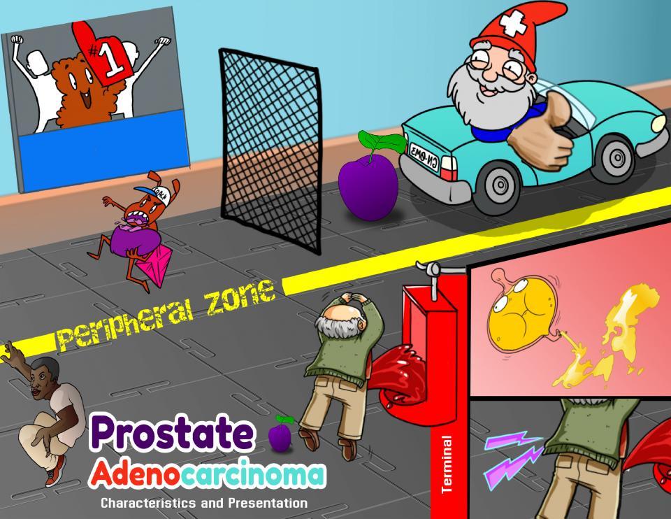 Prostate Adenocarcinoma Characteristics and Presentation