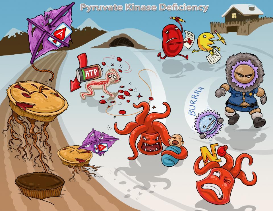Pyruvate Kinase Deficiency