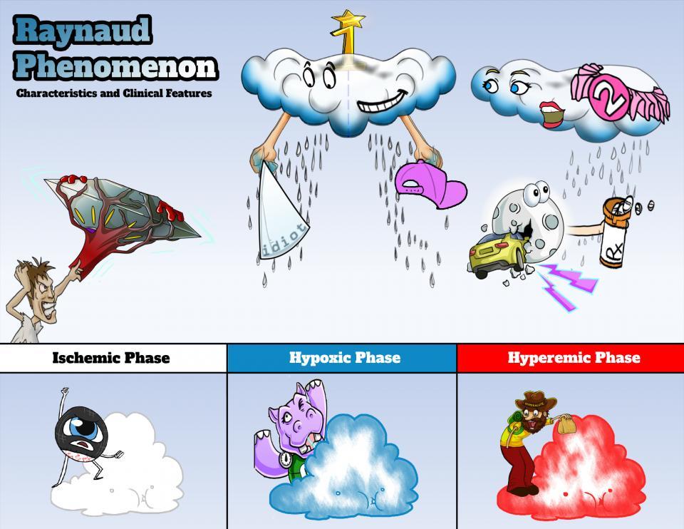 Raynaud Phenomenon Characteristics and Presentation