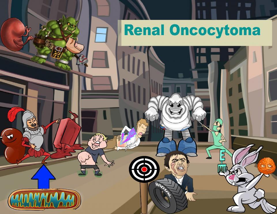 Renal Oncocytoma