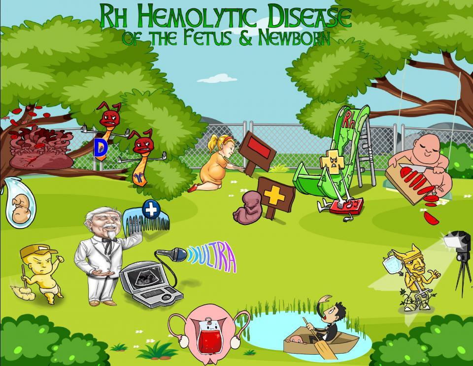 Rh Hemolytic Disease of the Fetus and Newborn