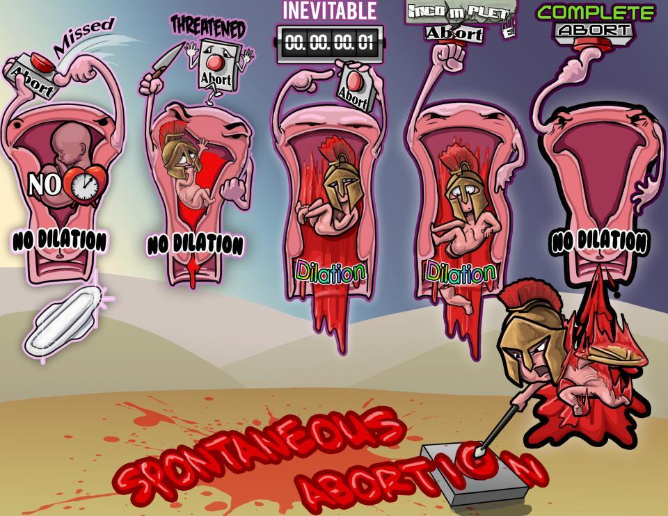 Spontaneous Abortion Types