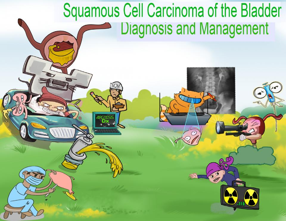 Squamous Cell Carcinoma of the Bladder Diagnosis and Management