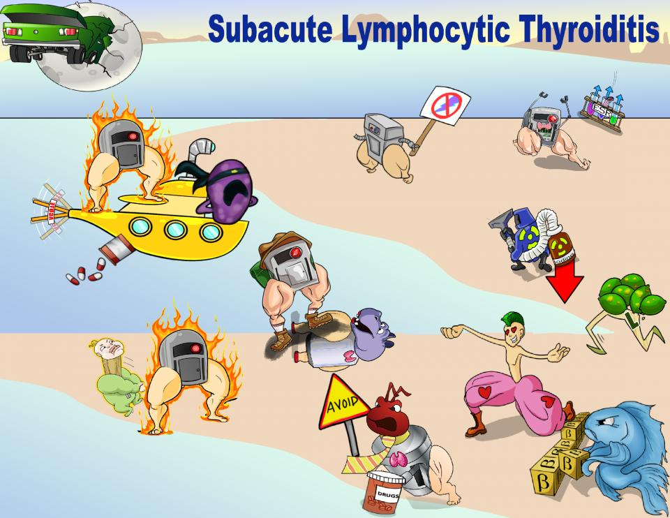 Subacute Lymphocytic Thyroiditis