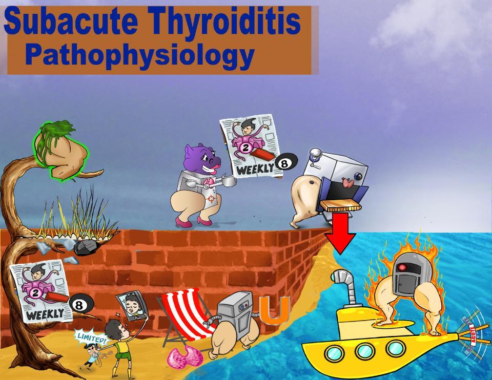 Subacute Thyroiditis Pathophysiology