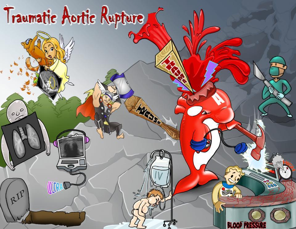 Traumatic Aortic Rupture