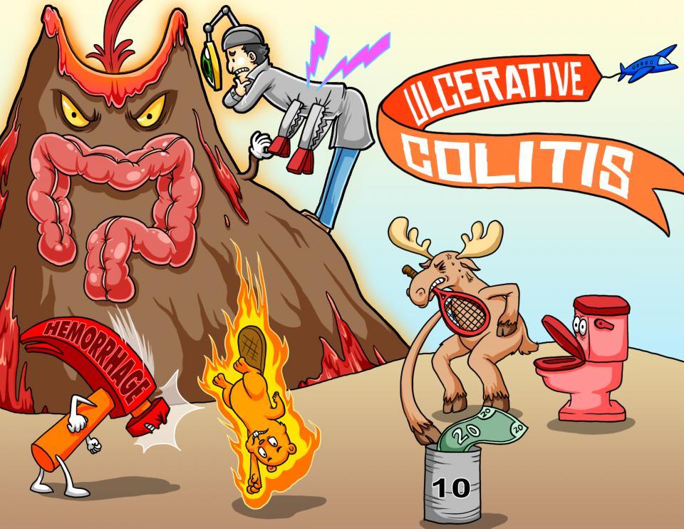 Ulcerative Colitis Assessment