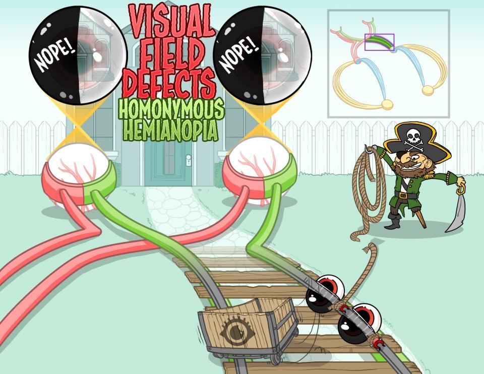 Visual Field Defects - Homonymous Hemianopia