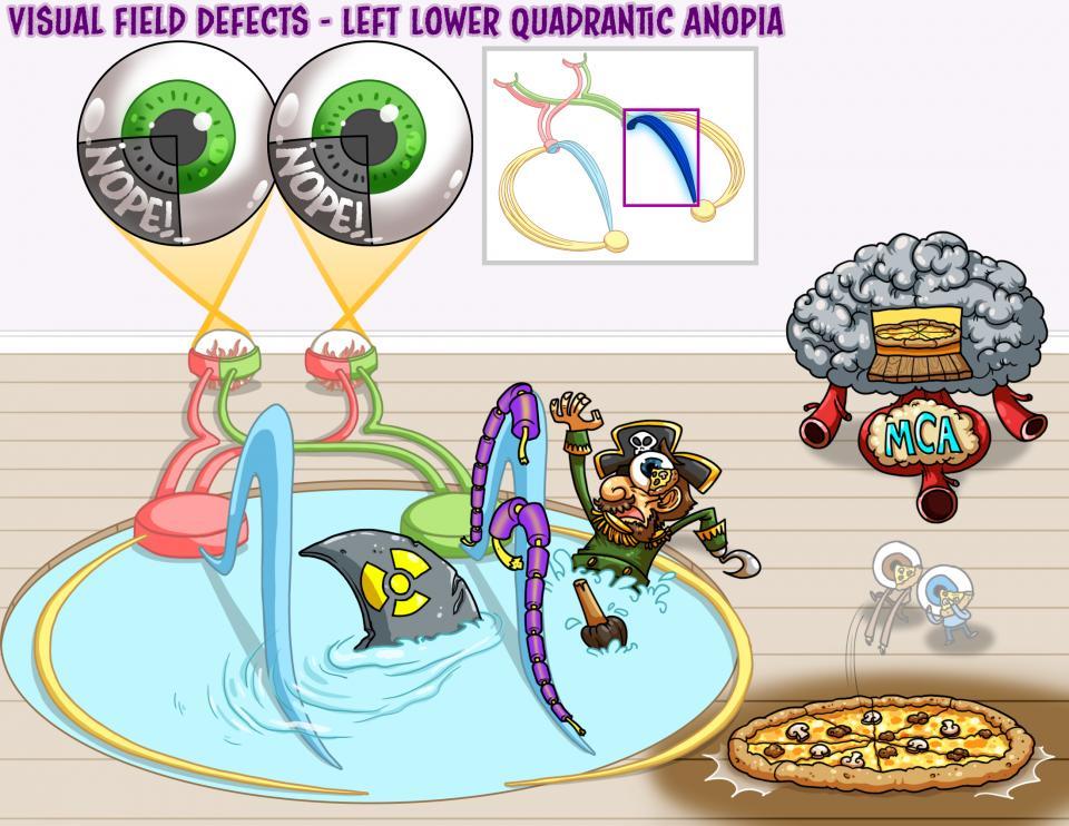 Visual Field Defects - Left Lower Quadrantic Anopia