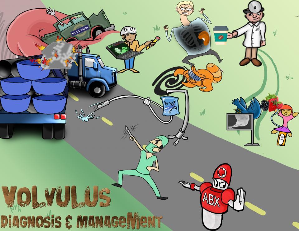 Volvulus Diagnosis and Management