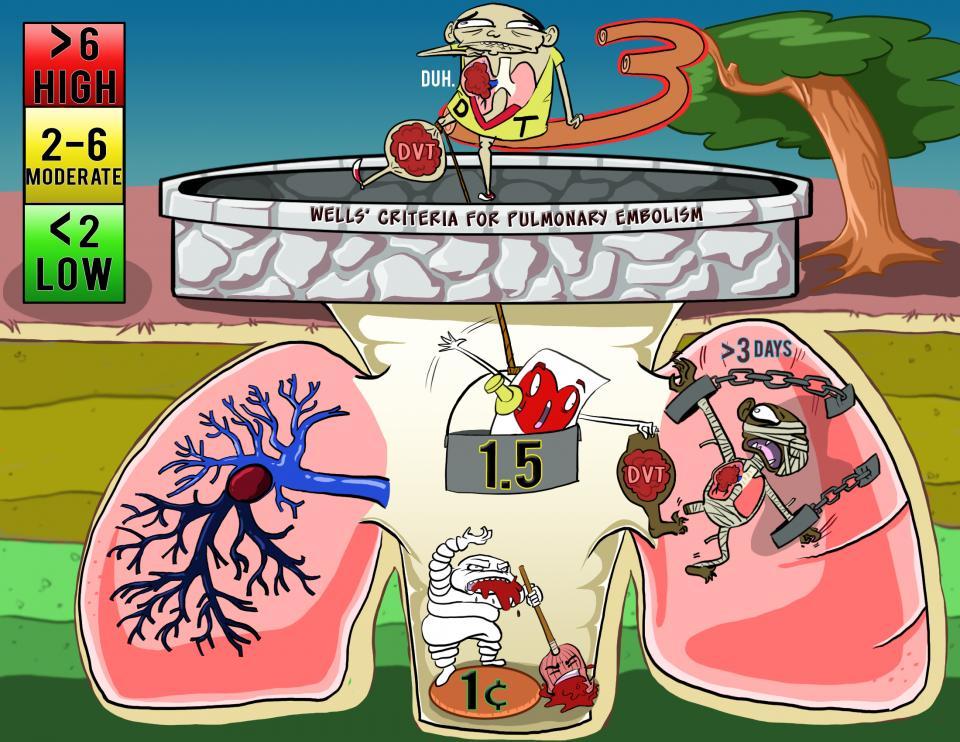 Wells' Criteria for Pulmonary Embolism