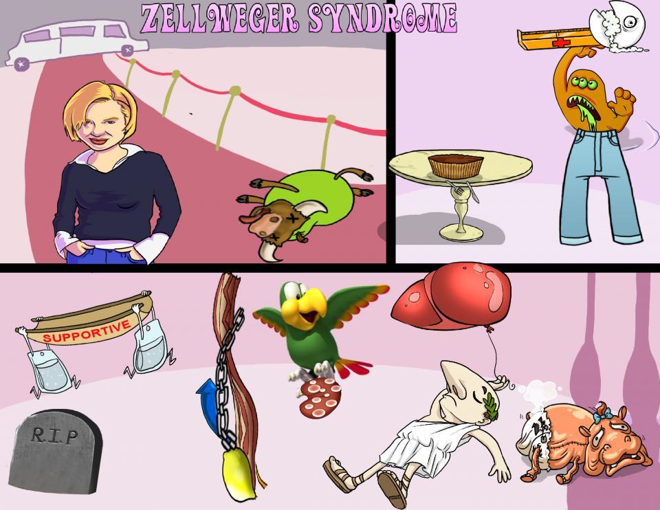 Zellweger Syndrome