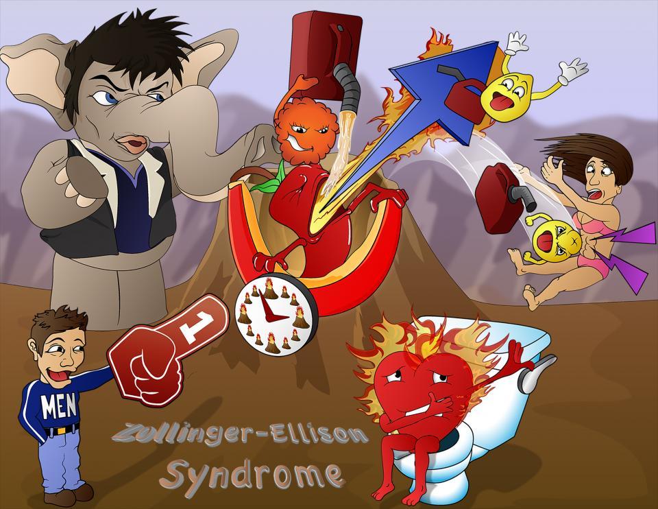 Zollinger-Ellison Syndrome Disease